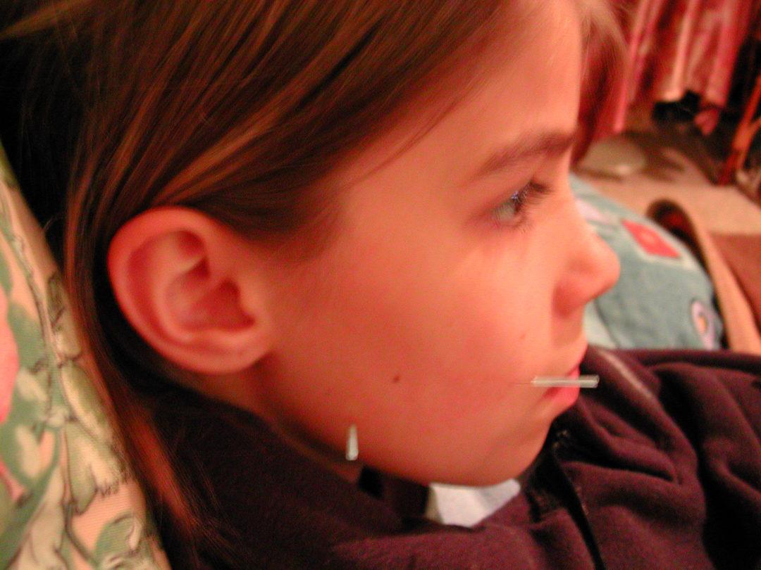 Naturheilkunde und Kinderakupunktur